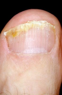 Лечение вросшего ногтя во владивостоке