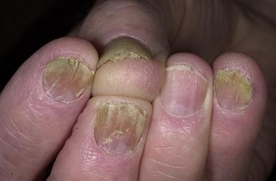 Грибок ногтей на руках фото