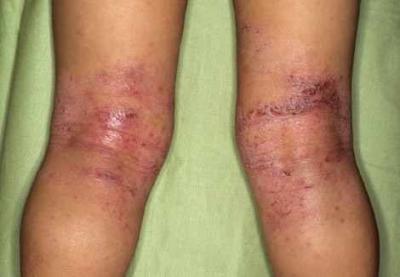Прикорм ребенка атопическим дерматитом