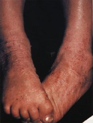 Чем лечить атопический дерматит у ребенка 1.5 года
