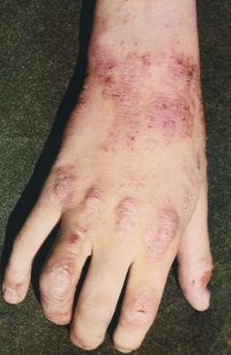 Пластырь от псориаза нежная кожа фото
