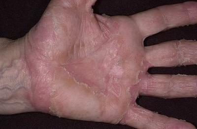 Лечение артроза коленного сустава екатеринбург