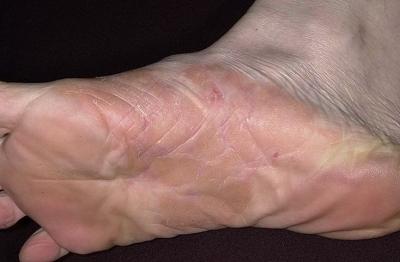 Какие бывают болезни похожие на псориаз