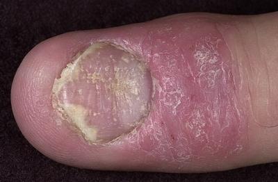 Болезни похожие псориаз