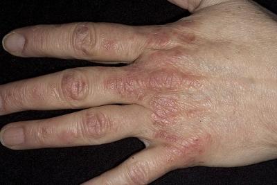 Лекарства от псориаза нафталан