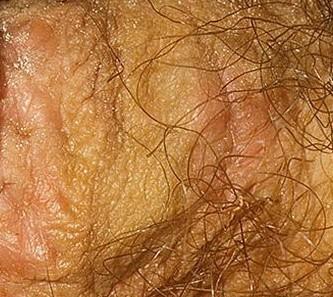 Женские половые заболевания фото