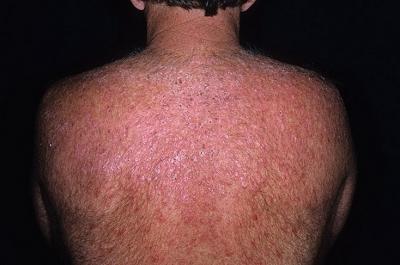 13 симптомов волчанки, которые опасно игнорировать - Лайфхакер