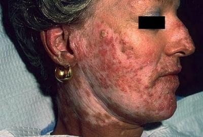 Системная красная волчанка : болезнь с тысячью лиц