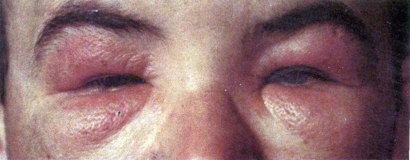Мимические морщины вокруг глаз в 23