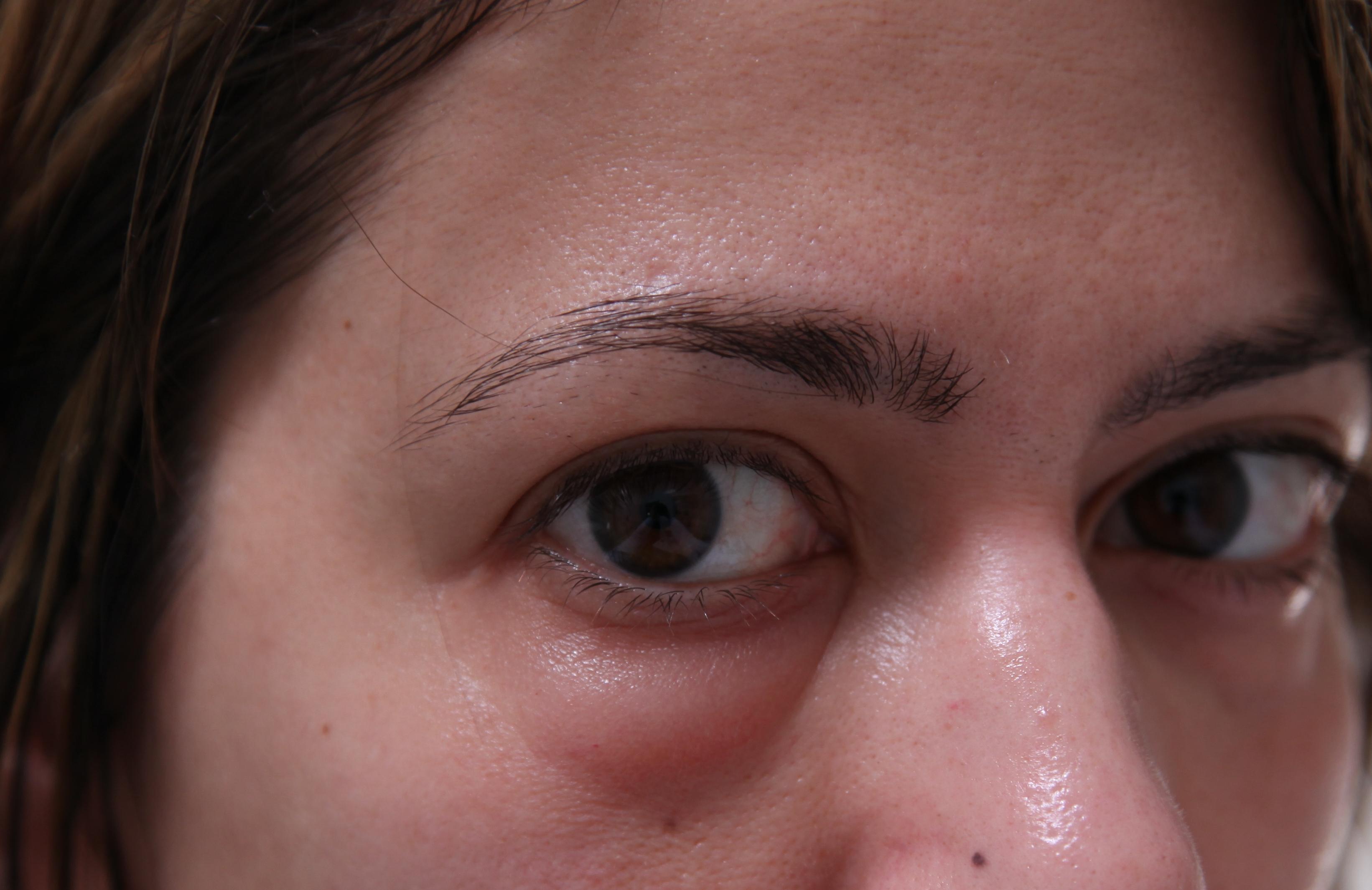 аллергия на глазах на какой продукт