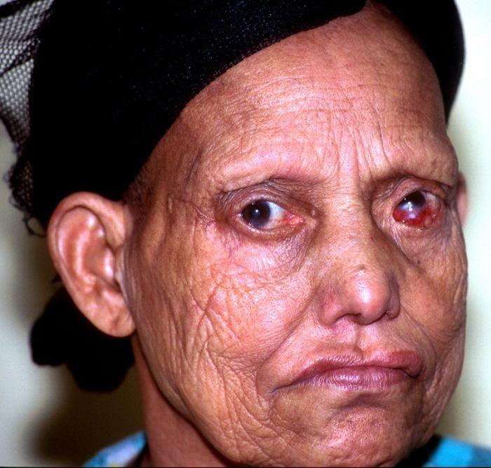Заболевание лепрой (11 фото ) t - Сайт хорошего