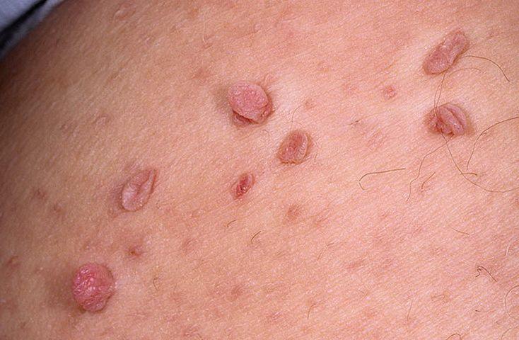 папилломы на теле причины и лечение