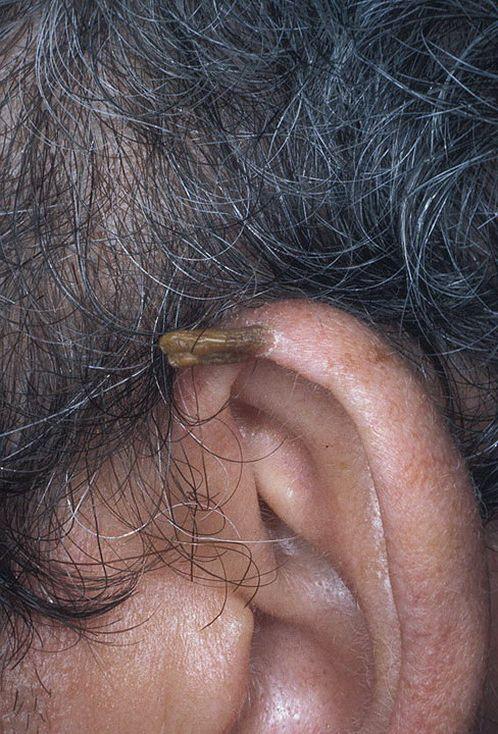 Медицина генитальные бородавки