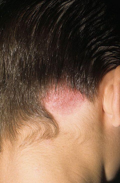 Поражение волосистой части головы грибком