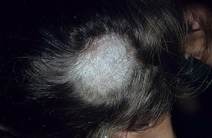 Грибок на голове у ребенка чем лечить