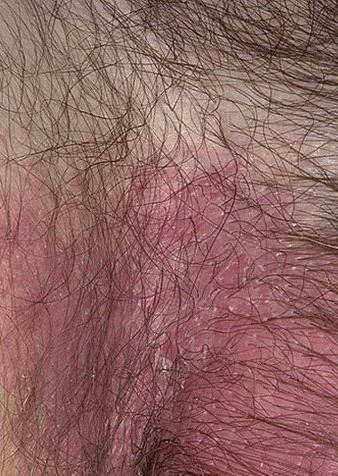 Дерматит фото симптомы лечение у взрослых