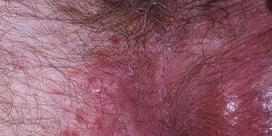 Чем полечить выпадение волос