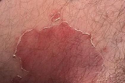 Грибковое поражение кожи паховых складок
