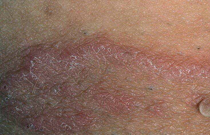 Грибок паховой области лечение симптомы