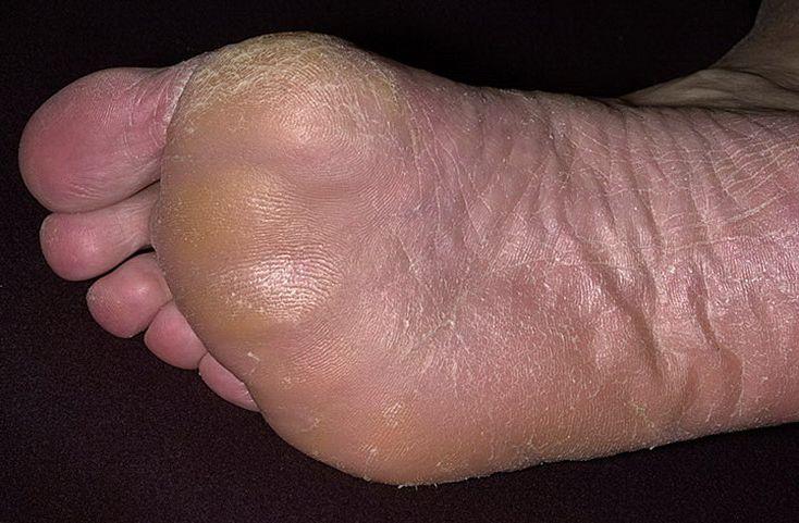 Грибки на ноге из за чего появляются