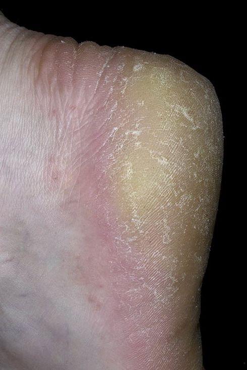 Грибок на коленях чем лечить