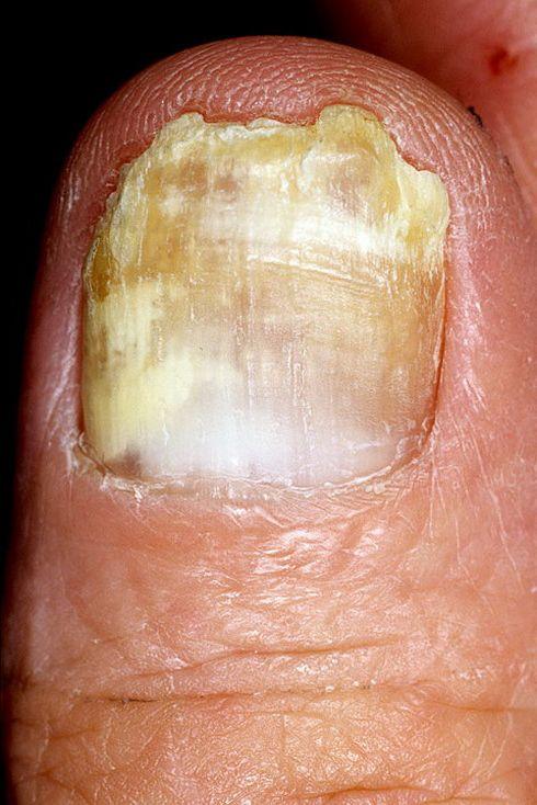 Фотографии грибка ногтей на ногах.