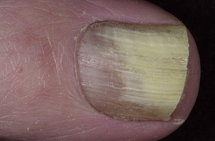 Как вылечить грибок ногтей с помощью таблетки