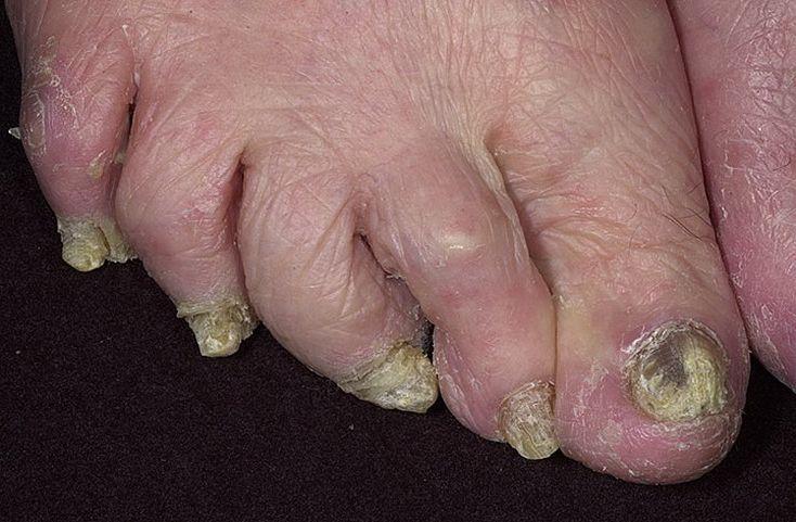 Лекарственные средства от грибка ногтевой пластины