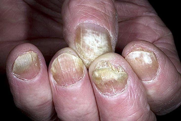 Как выглядит грибок ногтей на руках