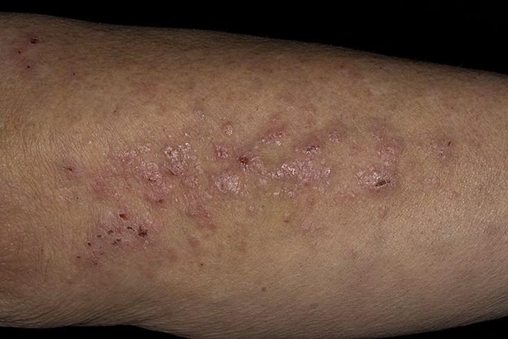 Атопический дерматит фото взрослый