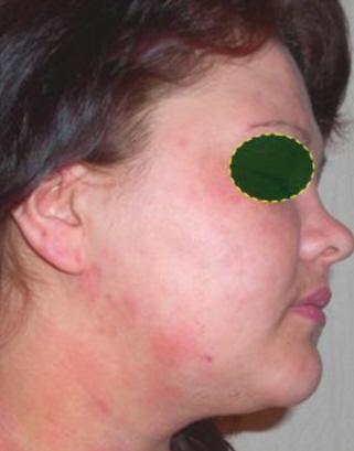 Какие мази применяют для лечения псориаза