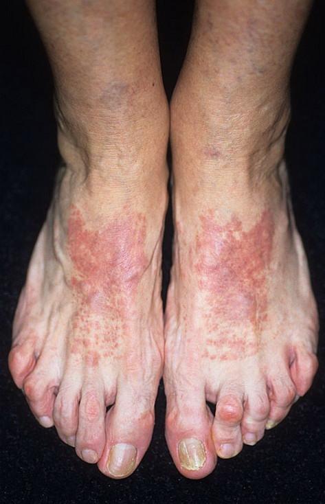 Ночной зуд при атопическом дерматите