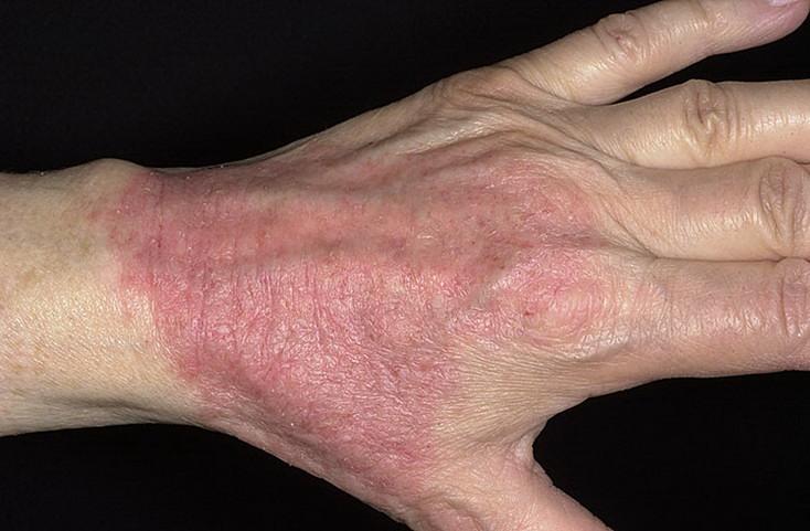 Заговоры от атопического дерматита