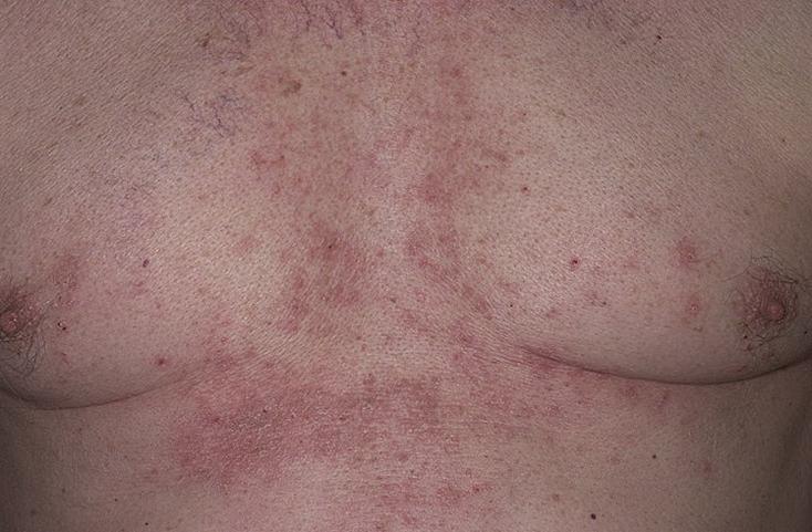 себорейный дерматит это аллергия или нет