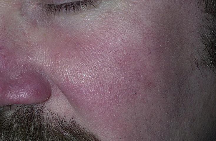 Вазелин как средство лечения псориаза