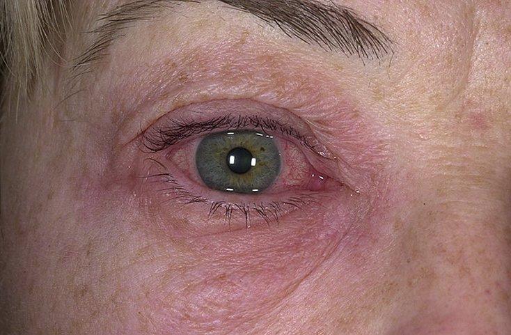 аллергия опухли веки