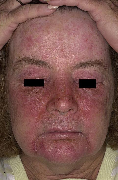 зуд кожи реакция на препараты