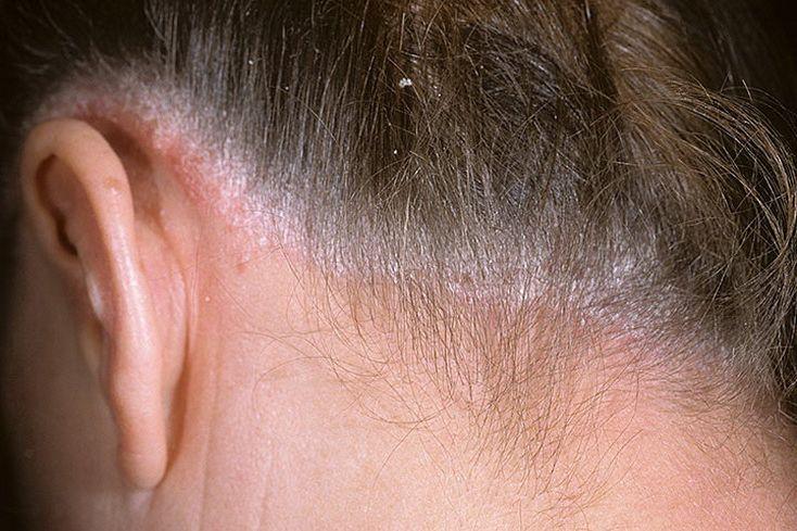 Болячки на голове и на ушах