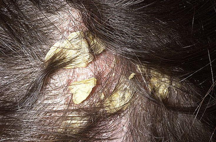 Какие симптомы имеют болезни похожие на псориаз