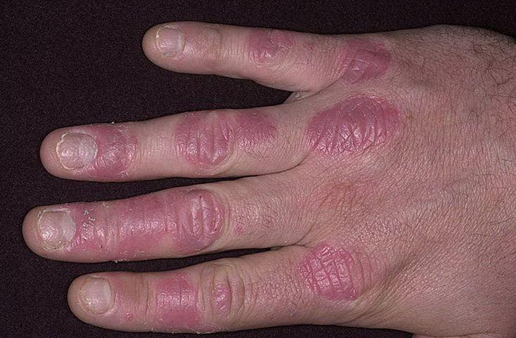 Причины псориатического поражения рук