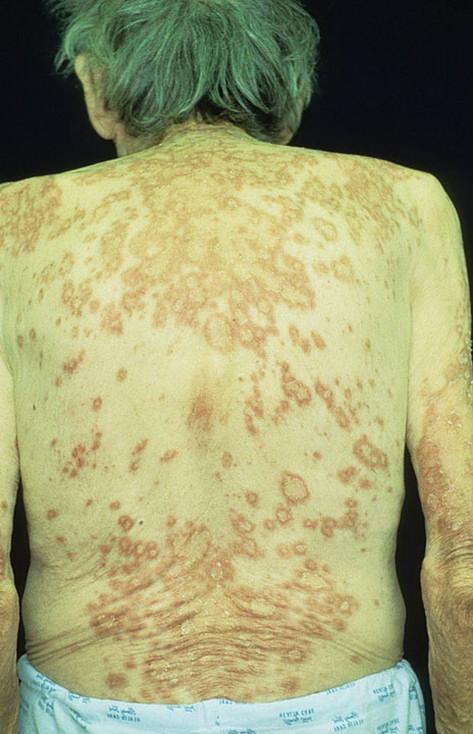 Волчанка : что это за болезнь, фото, симптомы, лечение взрх