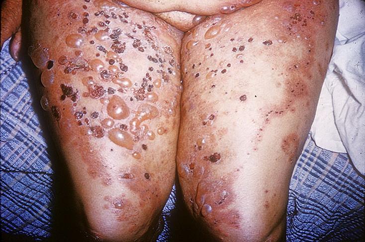 пузырчатка болезнь фото