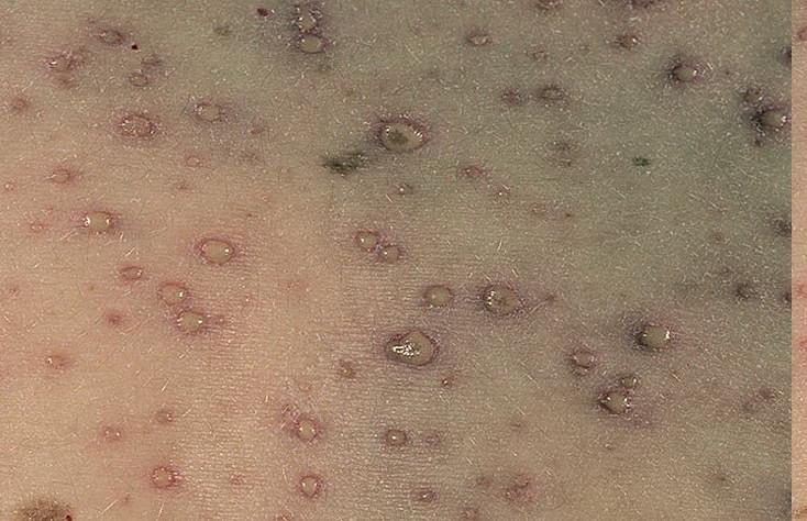 как выглядит энергетические паразиты в теле человека