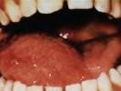 Макроглоссия фото