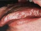 Волосатая лейкоплакия фото