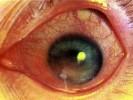 Склерозирующий кератит фото