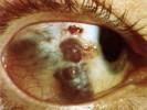 Стафилома склеры фото
