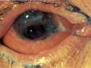 Язва роговины после нейропаралитического кератита
