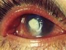 Абсцесс глаза фото