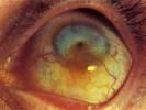 Вторичная глаукома фото
